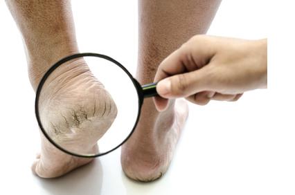 Wann zur medizinischen Fußpflege